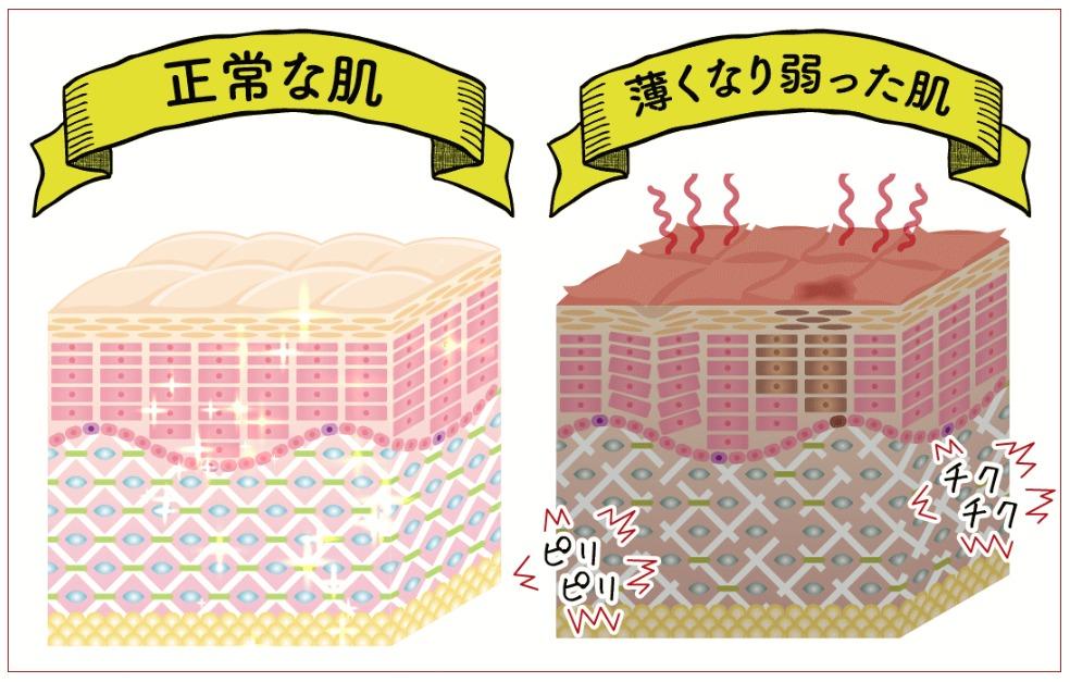 正常な肌と薄くなった肌